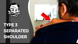 My separated shoulder - MTB Injury
