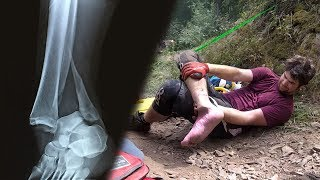 Broke My Ankle Downhill Mountain Biking (Graphic)