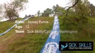 James Purvis Horrific Mountain Bike Crash