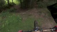 Bike to the face - Broken Collarbone